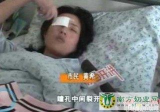 瓶装银鹭花生奶爆炸27岁姑娘右眼或失明